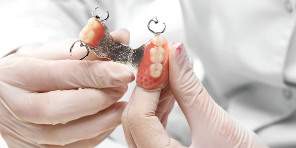 Removable Partial Dentures
